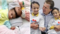 Formerly Conjoined Twins Now Happy First-Graders