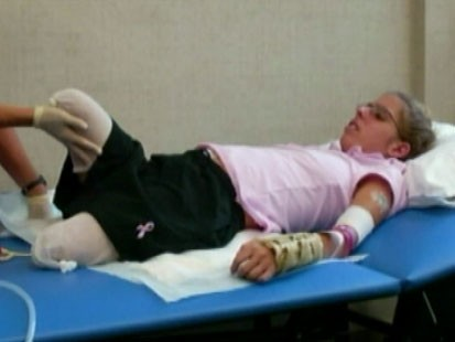 VIDEO: A double amputee in a hospital bed.