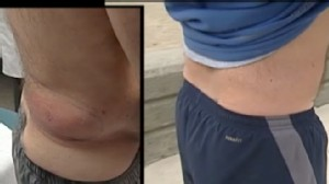 VIDEO: A new procedure could potentially get rid of body fat.