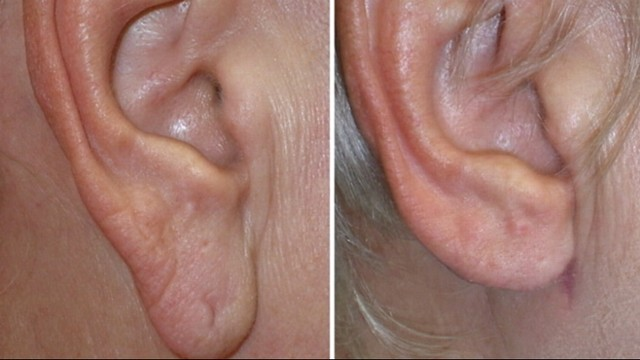 Earring For Fat Earlobes Large Submited Images