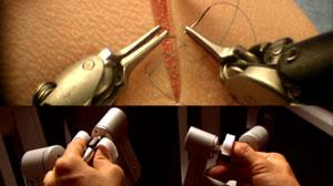 Robotic Surgery Offers Precise Handling, Quicker Procedures