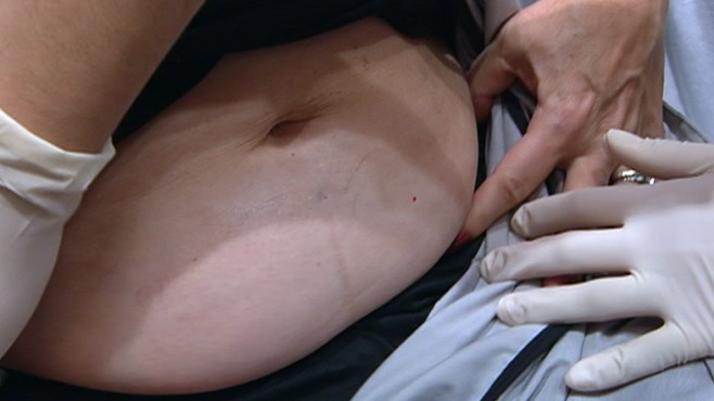 VIDEO: Procedures net positive result, improving patients' appearance with no incision.