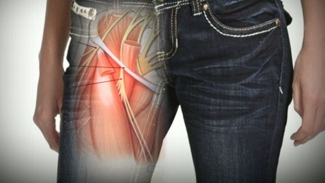 Tight Skinny Jeans Might Cause Nerve Damage Video - ABC News
