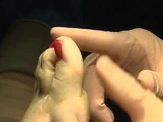 Watch: Extreme Plastic Surgery: Toe-Shortening