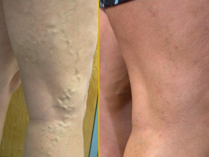 VIDEO: A new procedure can remove the bulging veins in 15 minutes.