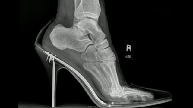 VIDEO: High Heel Shoe Hazards