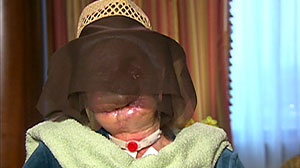 Photo: Woman mauled by chimpanzee reveals her face