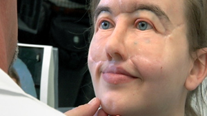 PHOTO Chrissy Steltz is shown wearing her prosthetic face.