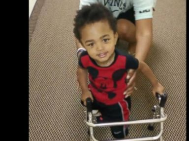 Watch 2-Year-Old Amputee Take First Steps