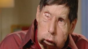 Second U.S. Face Transplant Patient Regains Feeling