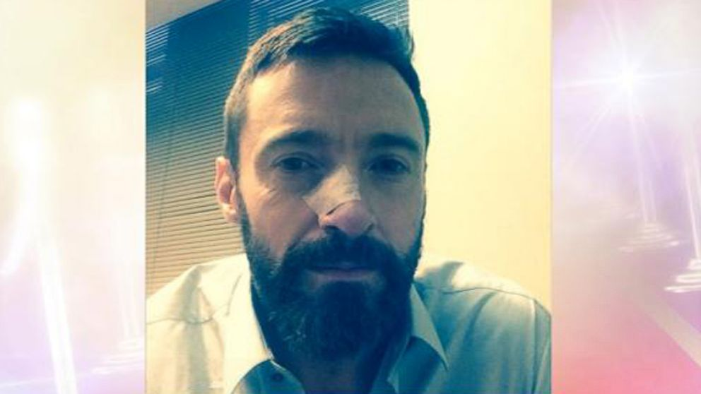 "The ""Wolverine"" actor posted a photo of himself after having another cancerous skin spot removed."