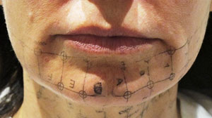 PHOTO: Thermage is one of the latest treatments in non-invasive plastics surgery.