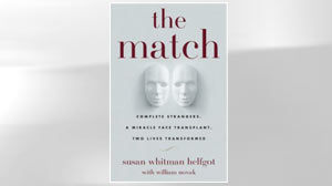 "PHOTO The cover of ""The Match: Complete Strangers, a Miracle Face Transplant, Two Lives Transformed"" by Susan Whitman Helfgot is shown here."