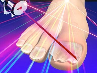 Лазерное лечение грибка ногтей в израиле