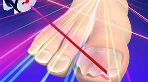 IMAGE: New laser treatment for toe fung