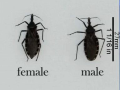 Watch:  CDC Warns of Deadly Kissing Bug