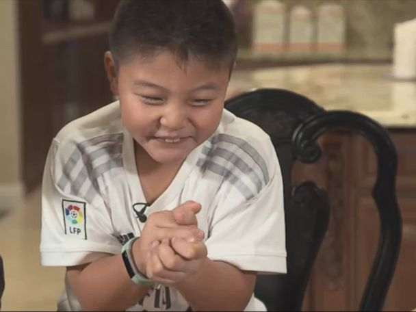 WATCH:  Boy's 'giggle fits' turn out to be rare form of epileptic seizures