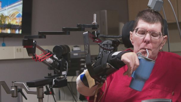 VIDEO: A quadriplegic man moves with the help of new technology.