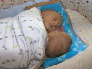 Parents Opt Not to Separate Conjoined Twin Boys