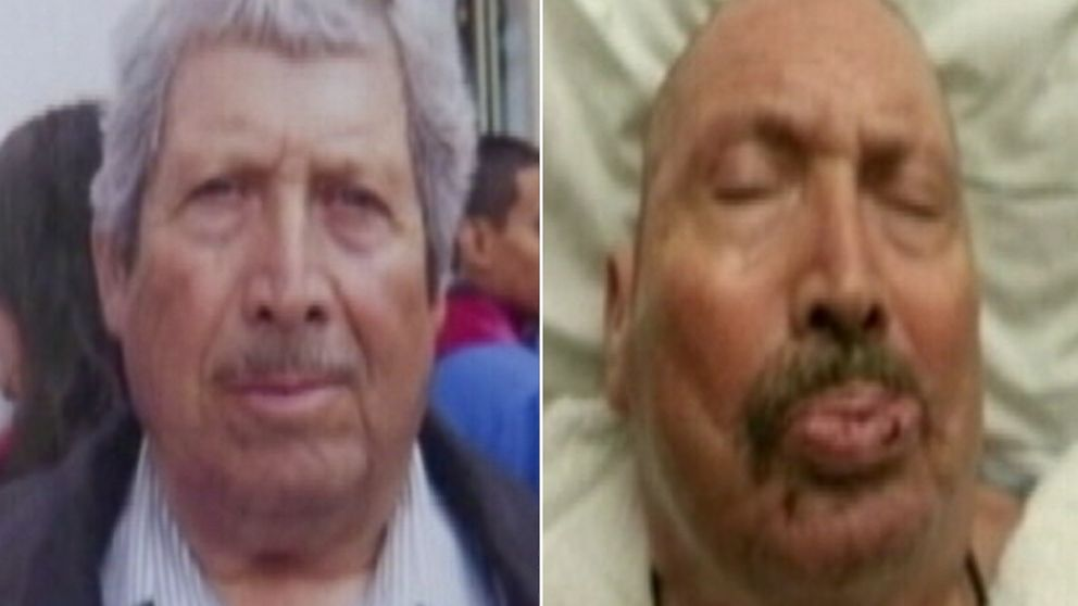 PHOTO: Silvino Perez is shown before and after his open heart surgery that left him in a vegetative state.