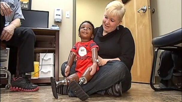 ABC wdbj baby prosthetic legs jtm 140206 16x9 608 Baby Charli Takes First Steps on Prosthetic Legs
