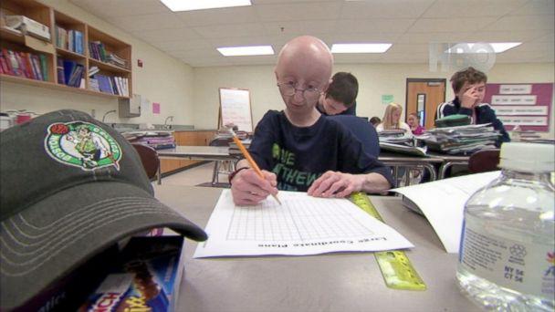 ABC wn muir progeria 131021 16x9 608 Life According to Sam: One Familys Fight Against Progeria