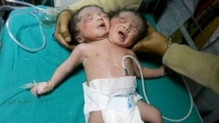 VIDEO: The birth of the conjoined twins occurred through Caesarean section.