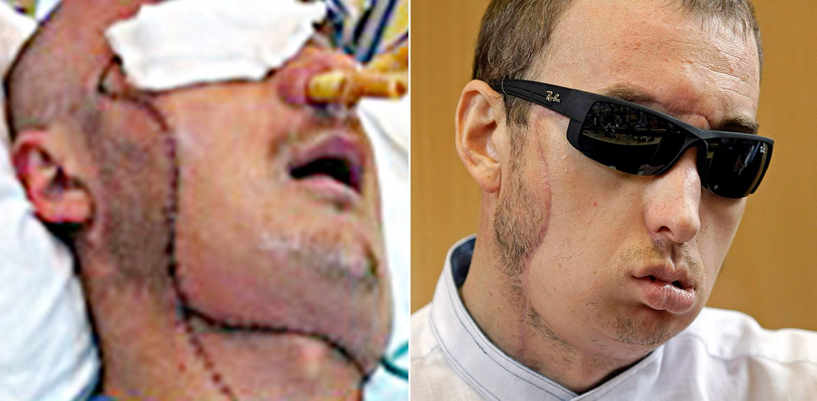 PHOTO: Polands First Successful Face Transplant