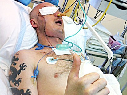 PHOTO: Polish doctors say they saved a man's life by performing a face transplant just three weeks after he was severely maimed in a workplace accident.