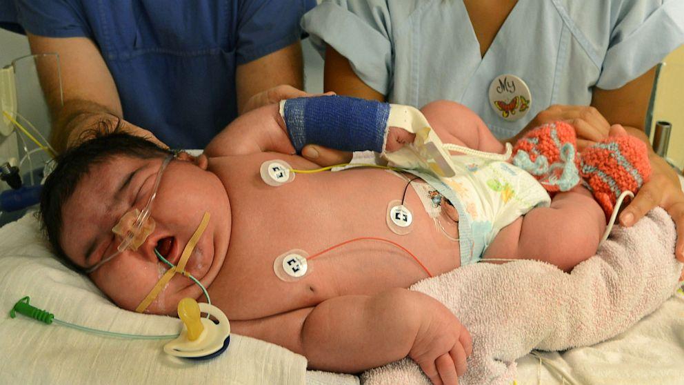 Abc news gestational diabetes mellitus