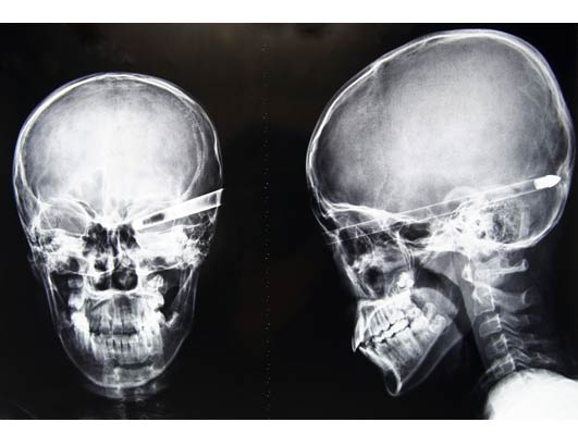 X-Ray Oddities arrow in head