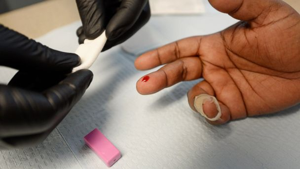 PHOTO: A woman gets an instant HIV/AIDS test inside a mobile clinic of John Wesley Community Health Institute during a health fair, on June 5, 2013, in Los Angeles.