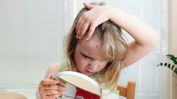 PHOTO: Little girl with chickenpox looks in a mirror in this undated photo.