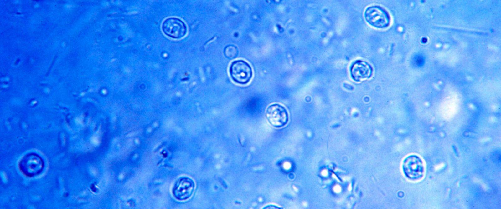 Cryptosporidium Parasite Alabama Water Park Tem...