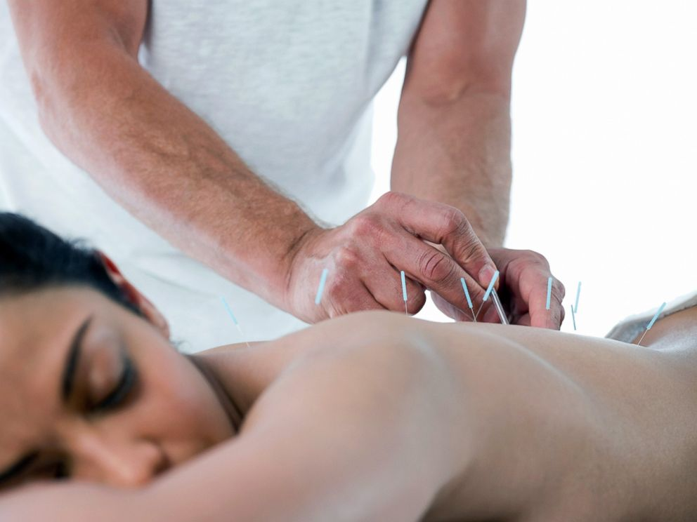 PHOTO: More than 14 million Americans have tried acupuncture for pain relief.