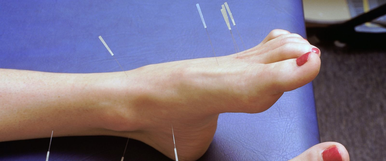 PHOTO: Some studies show that acupuncture is better for pain relief than pills or surgery.