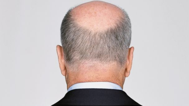 PHOTO: By the age of 50 approximately 85 percent of men have significantly thinning hair.