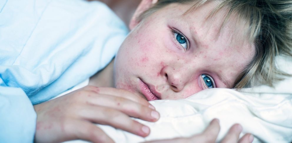 PHOTO: A young boy lays in bed fighting the measles infection in this stock photo.