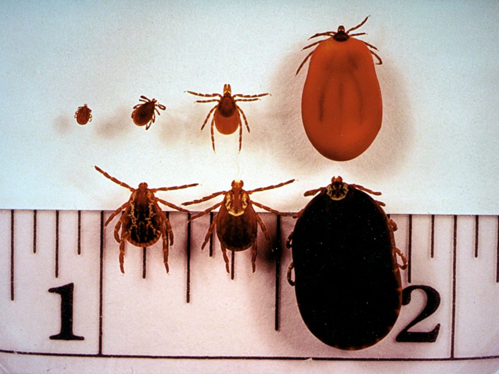 PHOTO: On the top row, the Ixodes dammini, or deer tick, which transmits lyme disease, is seen. On the bottom row is the dermacentor variabilis, or American dog tick.