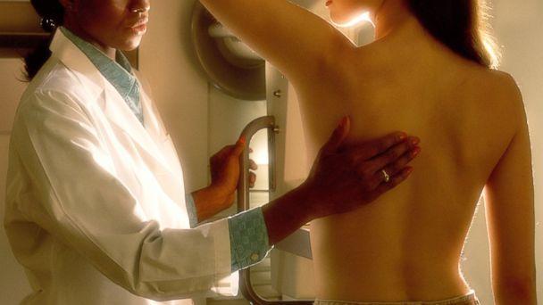 http://a.abcnews.com/images/Health/GTY_mammogram_jef_150420_16x9_608.jpg