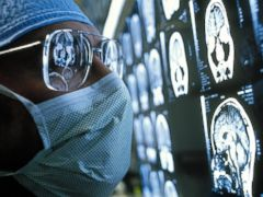 PHOTO: Scientists studying epilepsy patients found an area of the brain that when stimulated with electricity evoked the patients will to persevere.