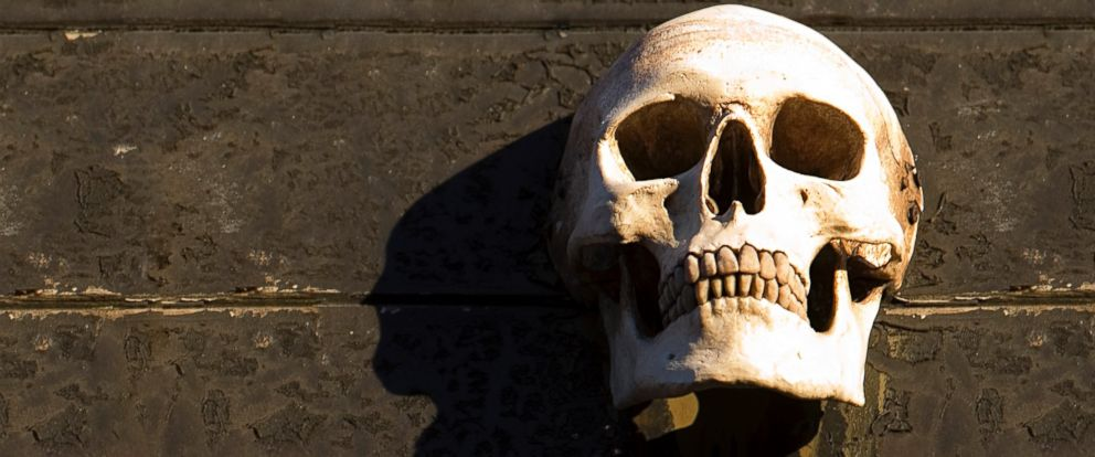 PHOTO: A skull is seen close-up in this undated file photo.