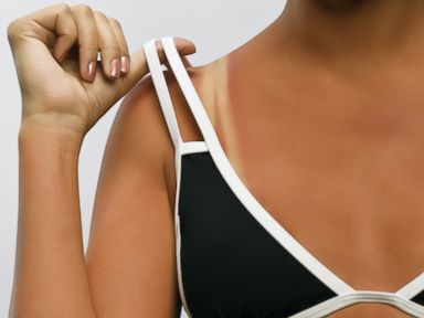 Top 6 Sunscreen Mistakes