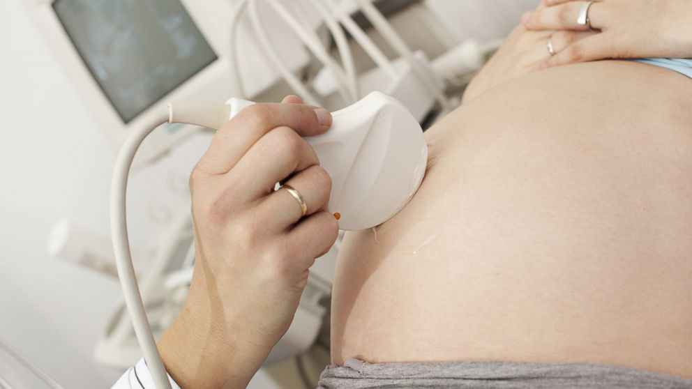 PHOTO: Having an ultrasound beforehand does not significantly deter women seeking abortions