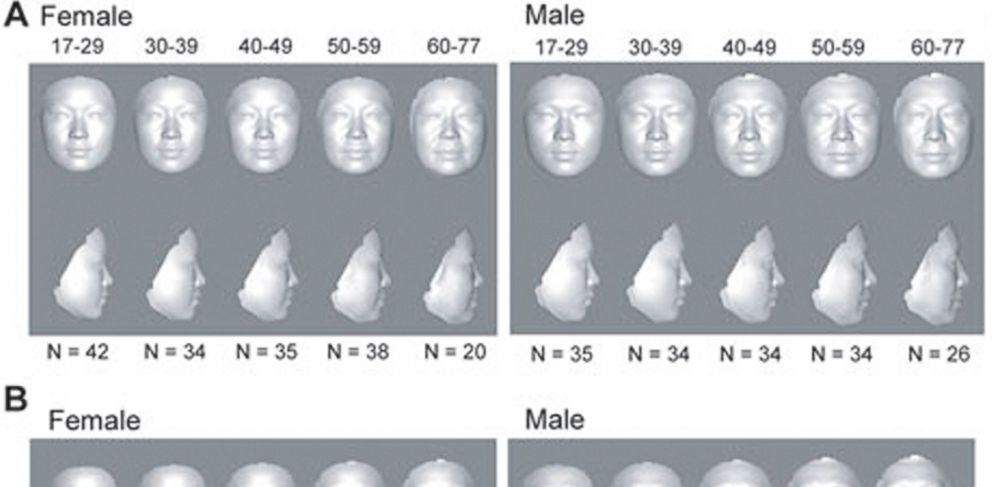 PHOTO: Doctors are using 3-D facial imaging to discover your real age.
