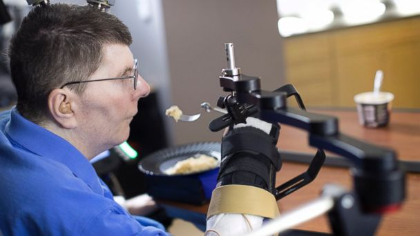 PHOTO: Patient uses electrical device to use his right hand years after being paralyzed.