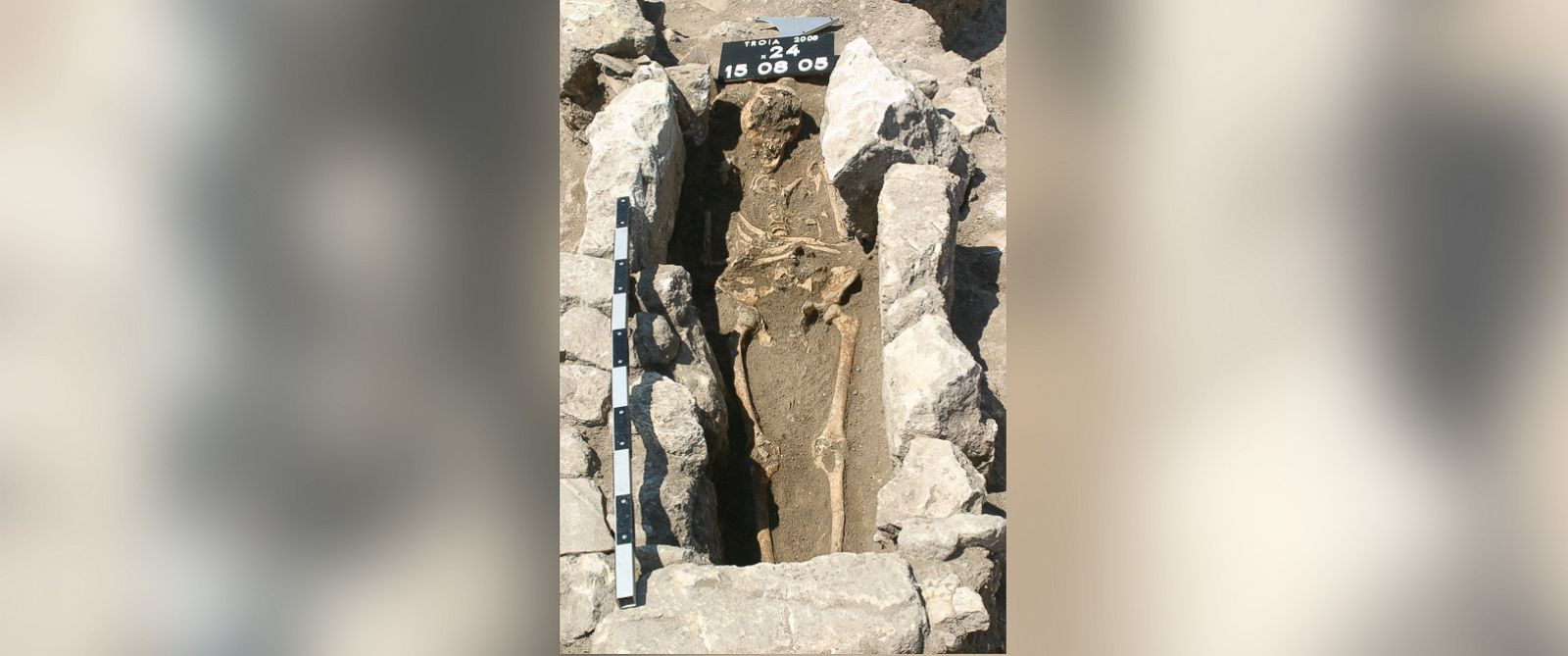 PHOTO: The skeleton of a woman who died 800 years ago on the outskirts of the ancient city of Troy in modern Turkey has yielded the first record of maternal sepsis in the fossil record.
