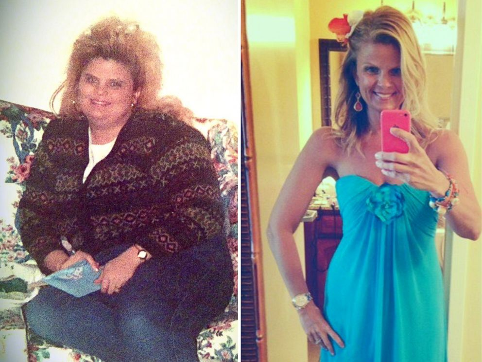 Photo Lori Filipiak Is Shown Before And After Her Dramatic Weight Loss