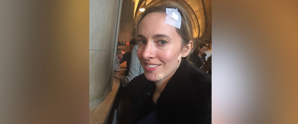 PHOTO: Despite being vigilant about protecting her skin, beauty editor Annie Tomlin was diagnosed with basal cell carcinoma.