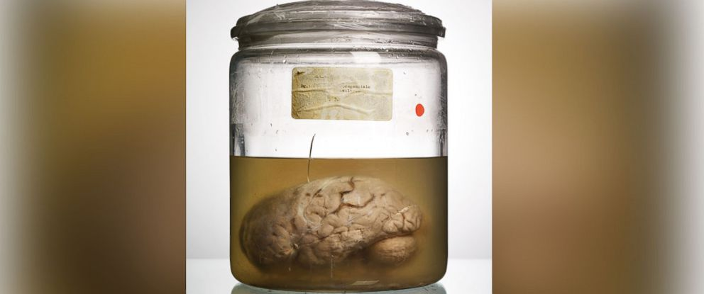 PHOTO: One of the brain specimens from the collection at University of Texas Austin is shown here.